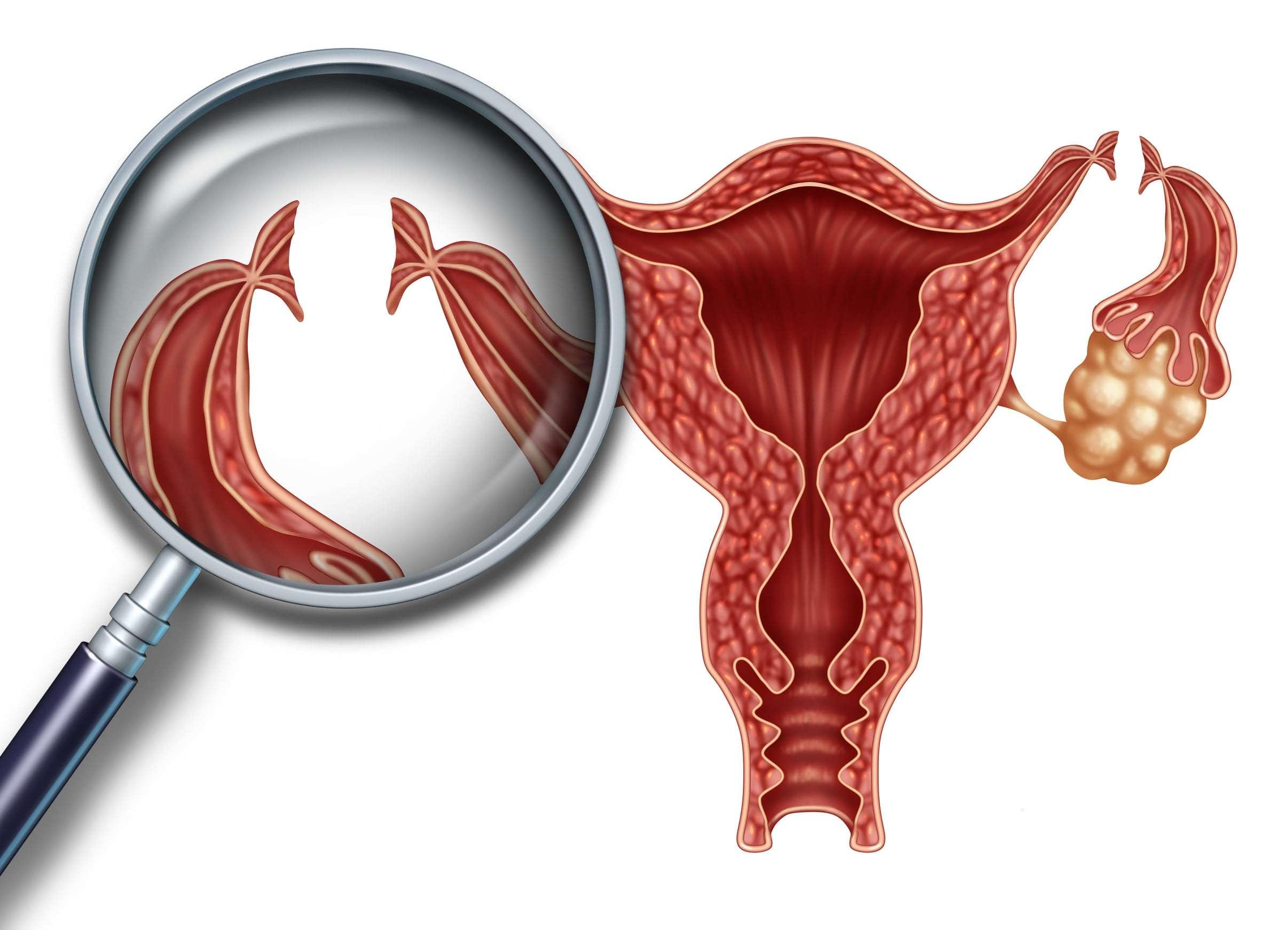 Reversão da laqueadura e FIV: conheça as vantagens e desvantagens