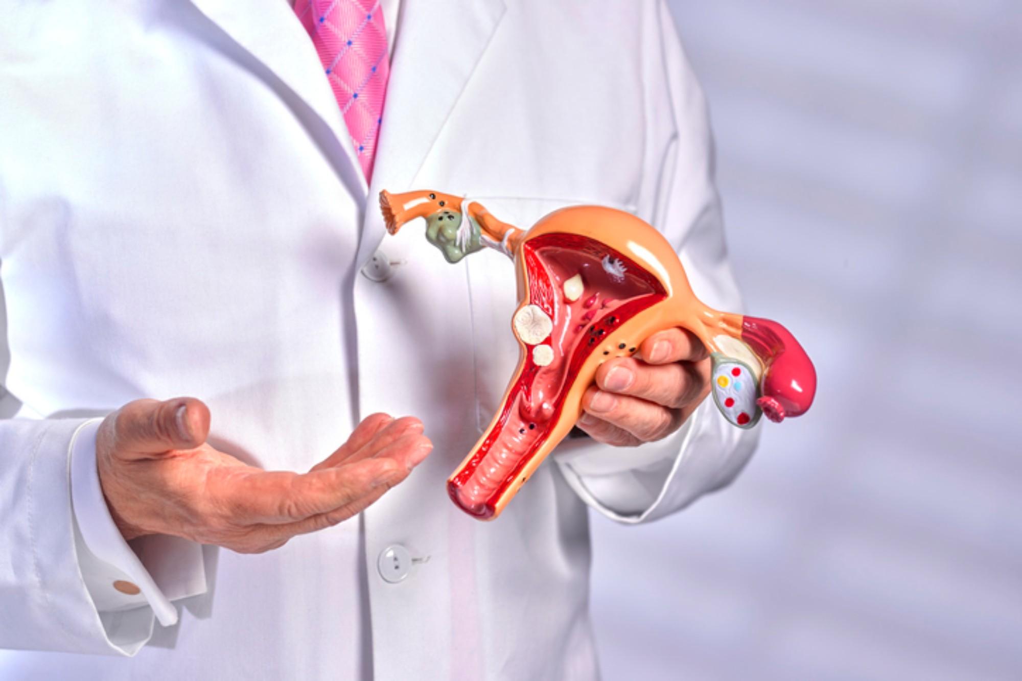 Ciclos anovulatórios: saiba o que é, suas principais causas e tratamentos