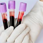 Amostras de sangue para PRP
