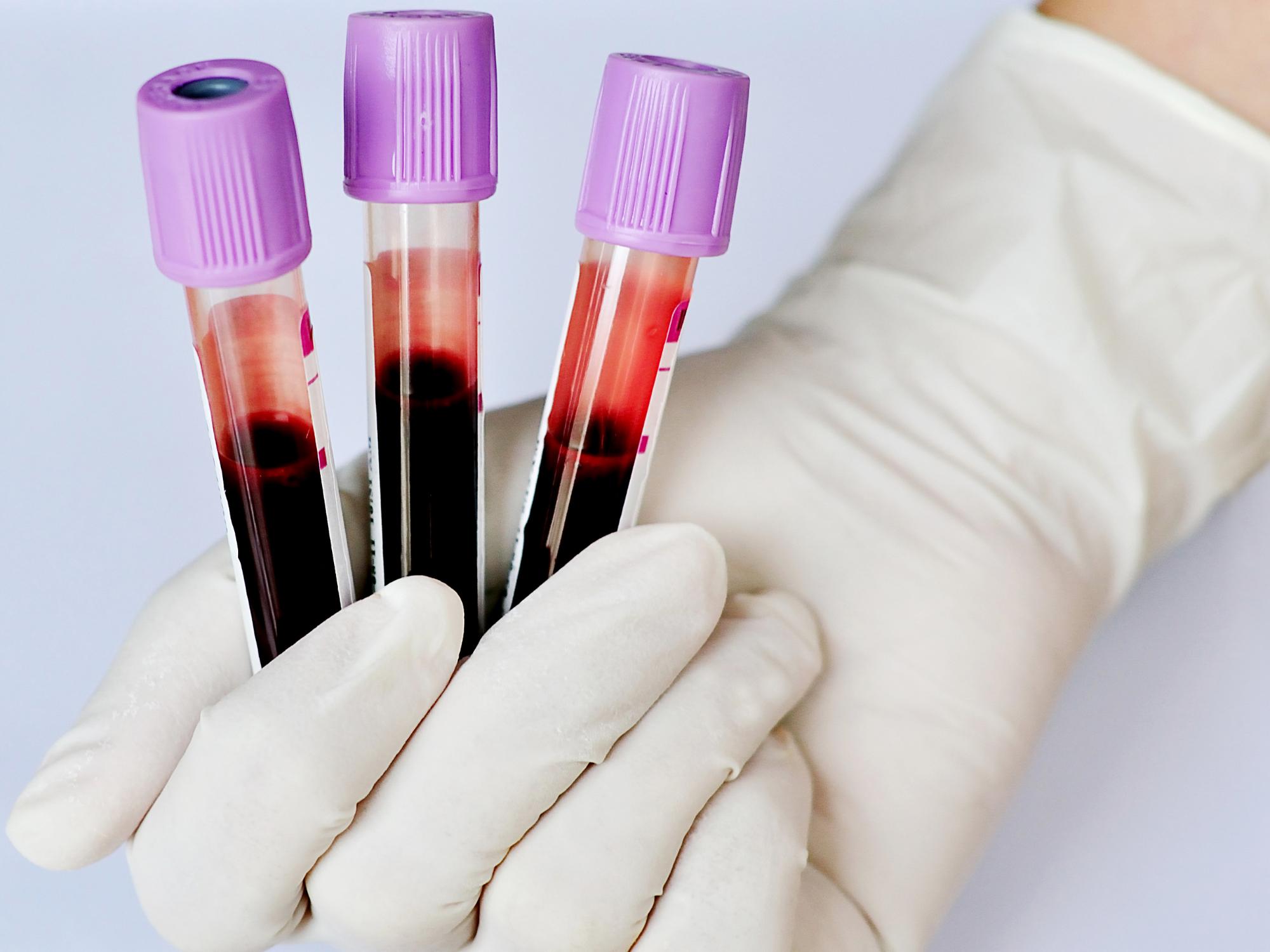 Plasma rico em plaquetas (PRP): o que é e como funciona?