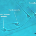 Foto com 4 espermatozoides no microscópio com aumento de 6.000 vezes