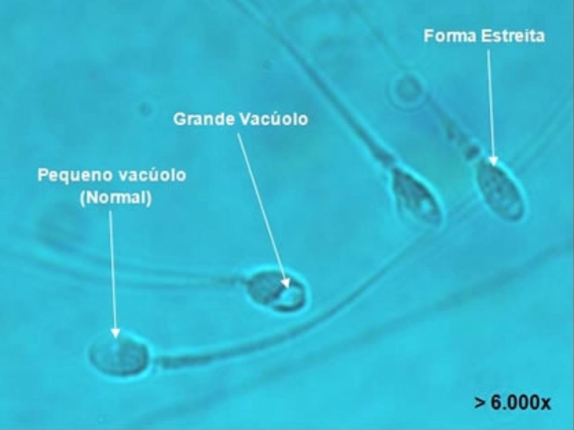 Entenda o que é o espermograma com morfologia estrita de Kruger